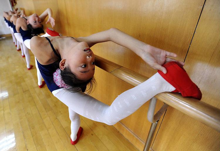 balerina-u-ginekologa